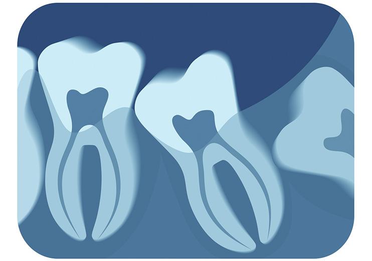 Cirugia-bucal-y-maxilofacial