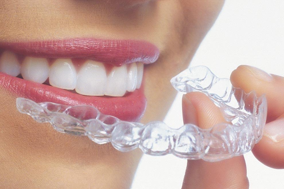 Oferta exclusiva en Ortodoncia Invisible
